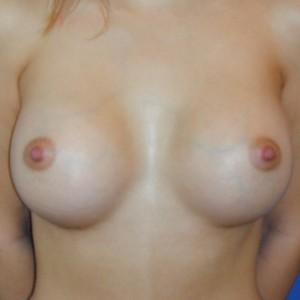 Brustvergrösserung: Abbildung 2 nachher