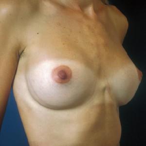 Brustvergrösserung: Abbildung 6 nachher