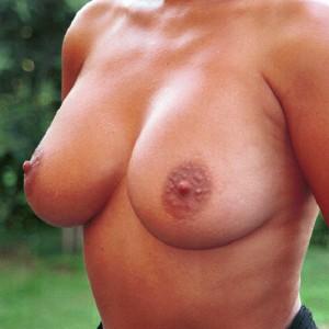 Brustvergrösserung: Abbildung 12 nachher