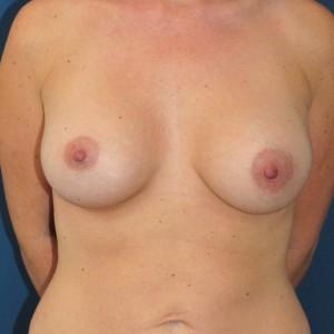 Brustvergrösserung: Abbildung 16 nachher