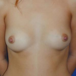 Brustvergrösserung: Abbildung 1 vorher