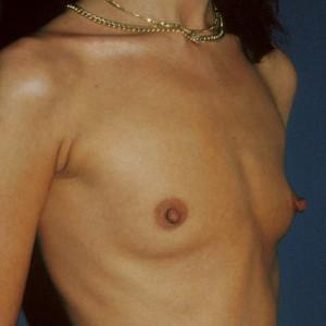 Brustvergrösserung: Abbildung 3 vorher