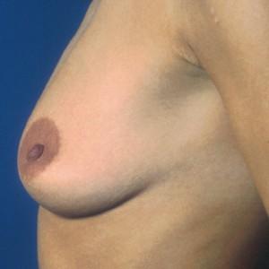 Brustvergrösserung: Abbildung 7 vorher
