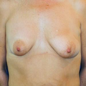 Brustvergrösserung: Abbildung 13 vorher