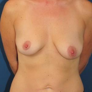 Brustvergrösserung: Abbildung 15 vorher