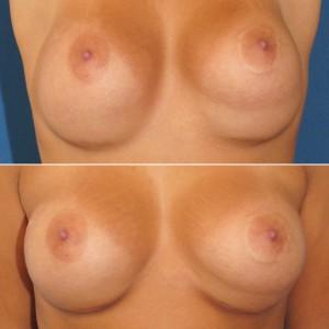 Brustvergrösserung: Abbildung 17 a+b vorher
